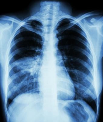 La VAP (ventilator-associated pneumonia)
